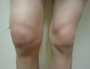Artrosis en la articulación de la rodilla